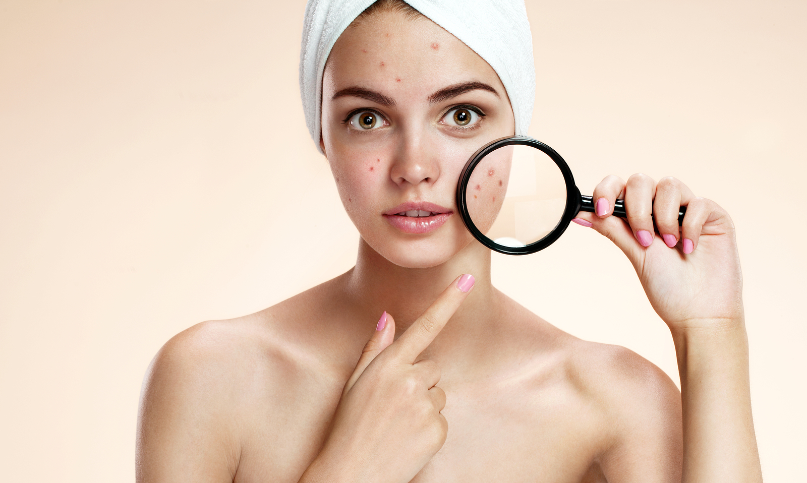 8 Surprising things that make your skin break out!