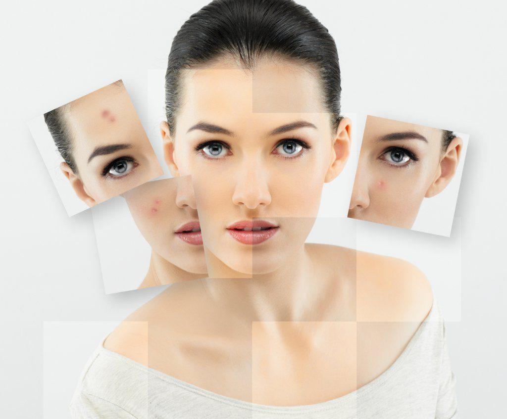 Good to treat acne
