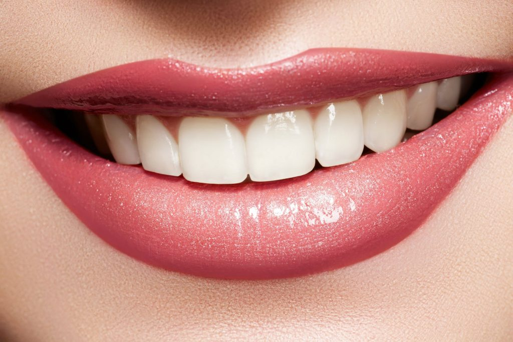 White-Teeth-Smile