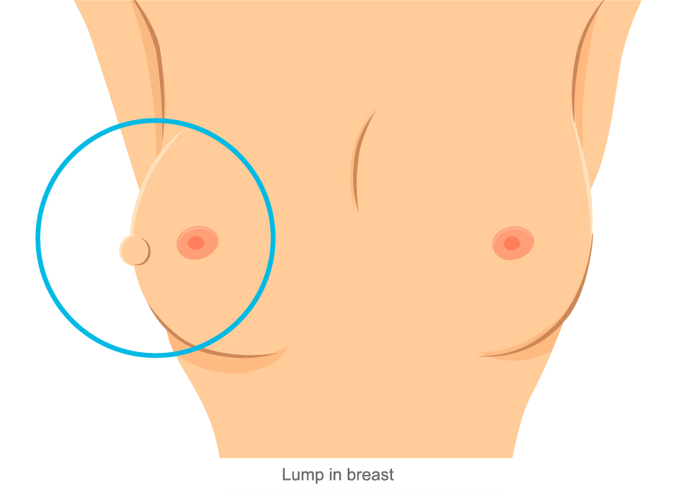 Lumpy breast diffusely on both breasts